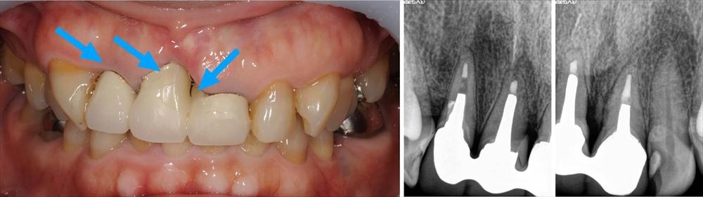 歯肉退縮とセラミッククラウン