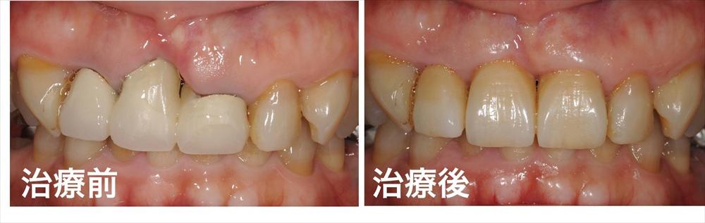 歯ぐきが下がった治療